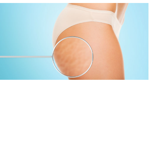 Cellulite Treatment (Mobile Booking)