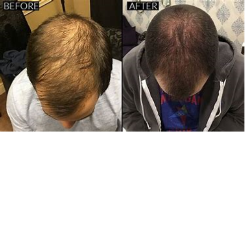 Hairloss Treatment (Mobile Booking)